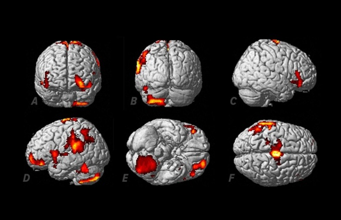 Regiões do cérebro ativadas enquanto a voluntária tinha experiências extracorpóreas. As regiões ativadas mais significativamente ficam no lado esquerdo e incluem a área motriz suplementar (F), o cerebelo (B,D,E), o giro supramarginal (D,F), o giro temporal inferior (B,D,F) e os giros orbitofrontais médio e superior (A,C,D,E).